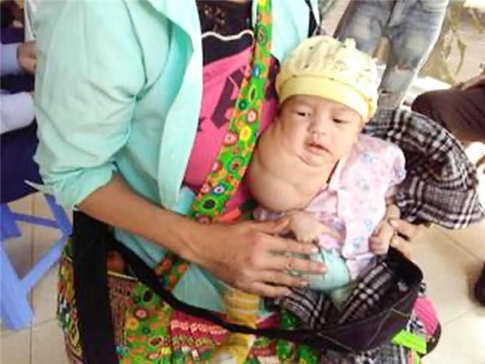 Phẫu thuật khối u bạch huyết khổng lồ cho bé trai mới 1 tháng tuổi