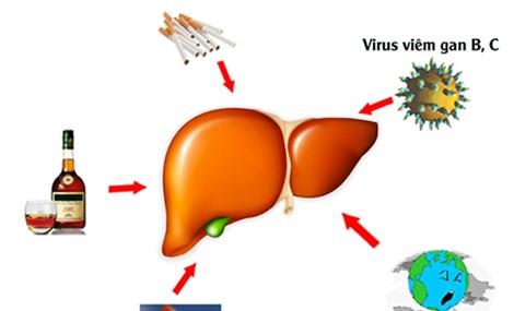 Alarming rate of hepatitis in Vietnam