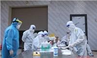 16 loại kit test nhanh kháng nguyên SARS-CoV-2 được Bộ Y tế cấp phép
